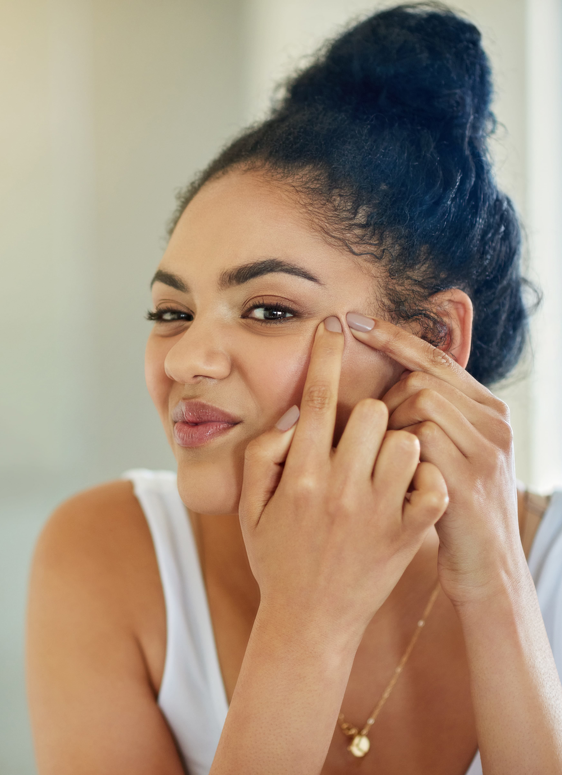 teen-acne